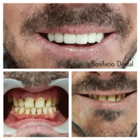 angeles-dentist-cb001