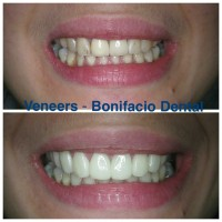 angeles-dentist-veneers-001