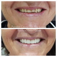 angeles-dentist-veneers-002