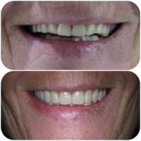 angeles-removable-dentures